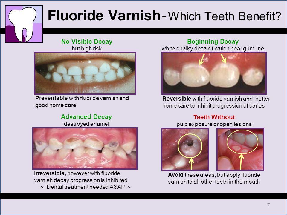 Chdp Dental Training Fluoride Varnish Ppt Download