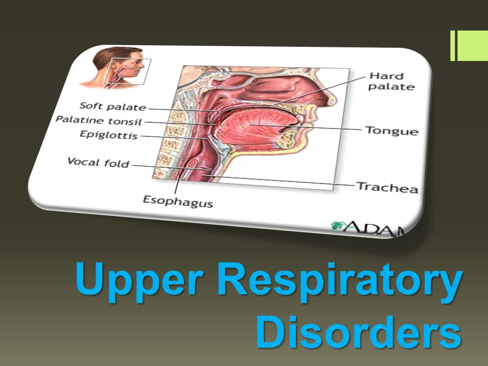 DISORDERS OF THE UPPER AIRWAY - ppt video online download