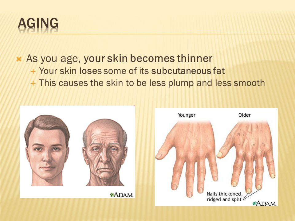 Skin Disorders  - ppt download