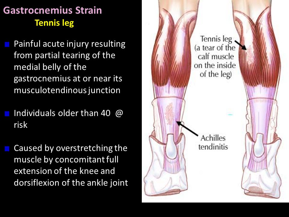 CLINICAL ANATOMY OF the LOWER LIMB PART II - ppt video online download