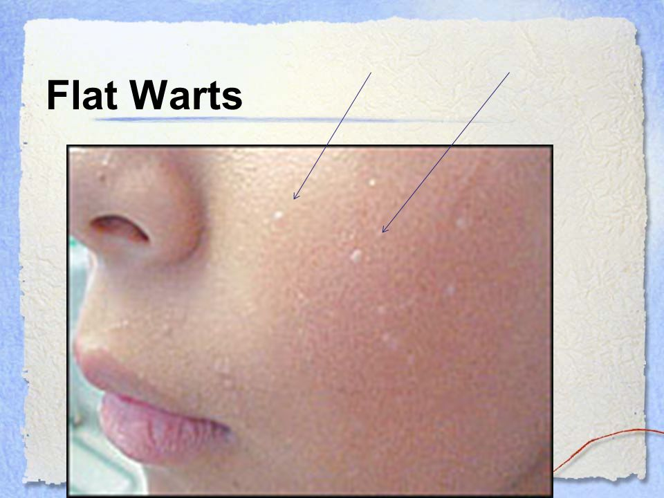 Chapter 34 Warts Revised 8 15 10 Ppt Download