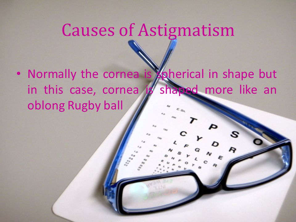Causes of Astigmatism Normally the cornea is spherical in shape but in this case, cornea is shaped more like an oblong Rugby ball.