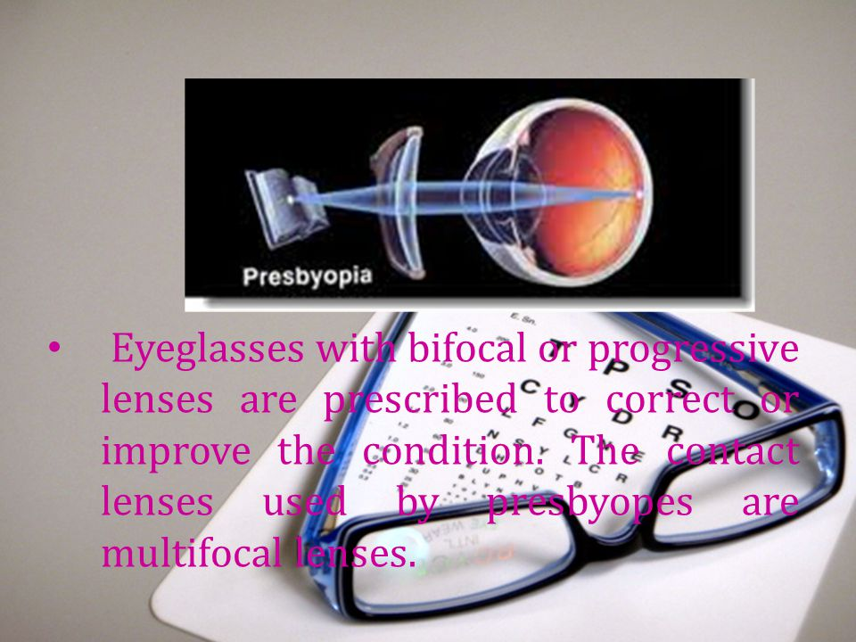 Eyeglasses with bifocal or progressive lenses are prescribed to correct or improve the condition.