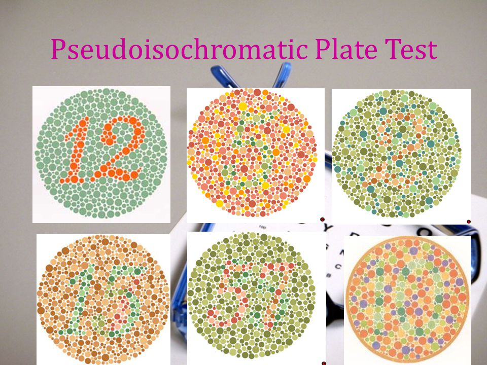 Pseudoisochromatic Plate Test