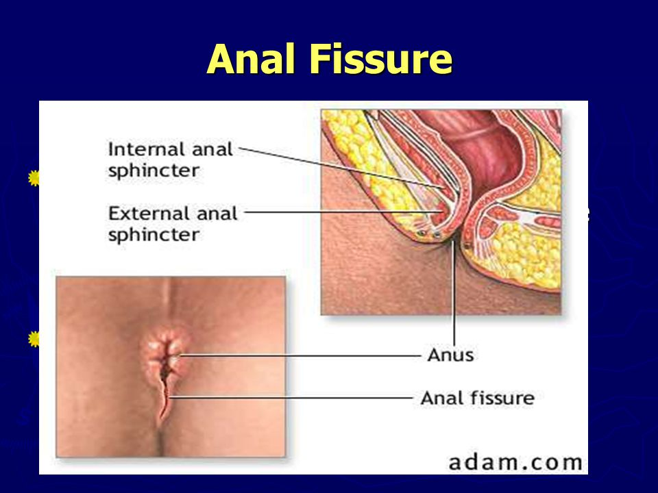 Anal Fissure Definition It is painful liner tears in the lining of the anal canal below the dentate.