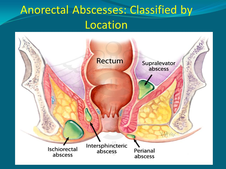 Anorectal Abscesses: Classified by Location