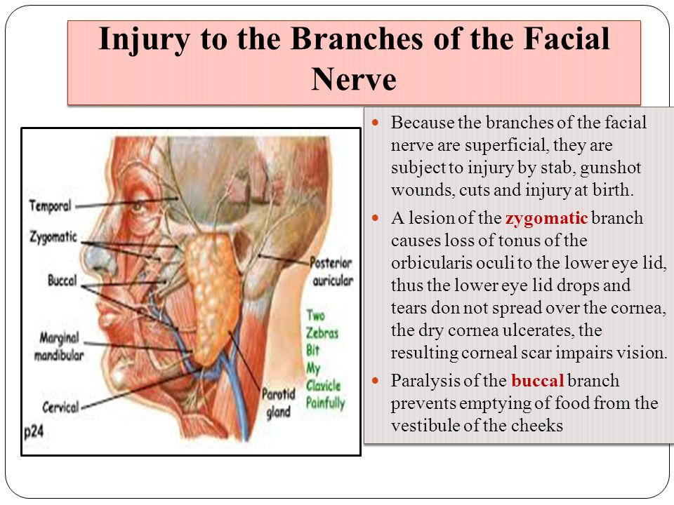 Charmant Surgical Anatomy Of Facial Nerve Galerie - Anatomie Ideen ...