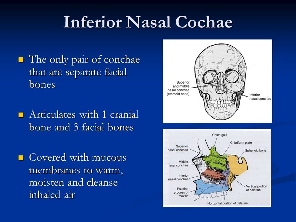 Facial Bone Anatomy Positioning Ppt Download