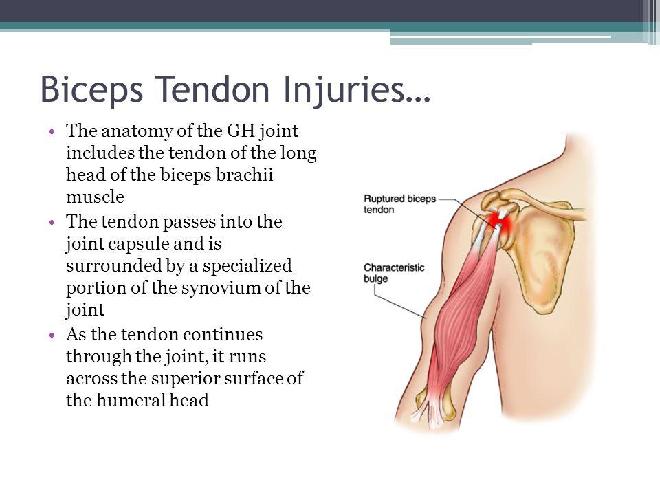 Injuries to the Shoulder Region - ppt download