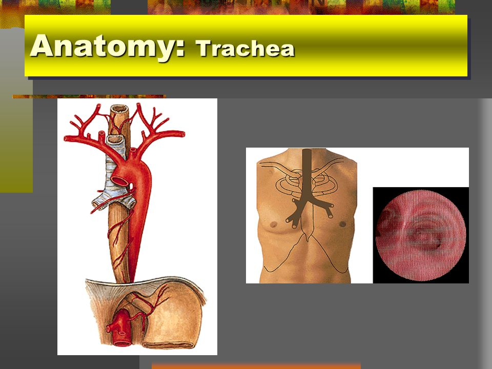 Tumor of Trachea and Esophagus - ppt video online download