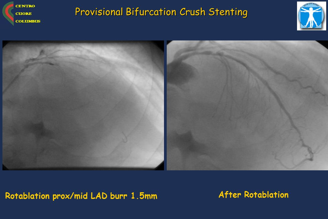 Provisional Bifurcation Crush Stenting