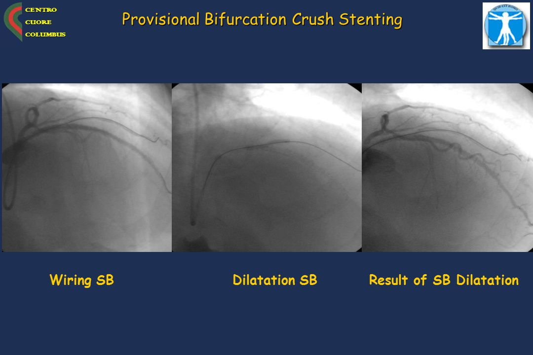 Result of SB Dilatation