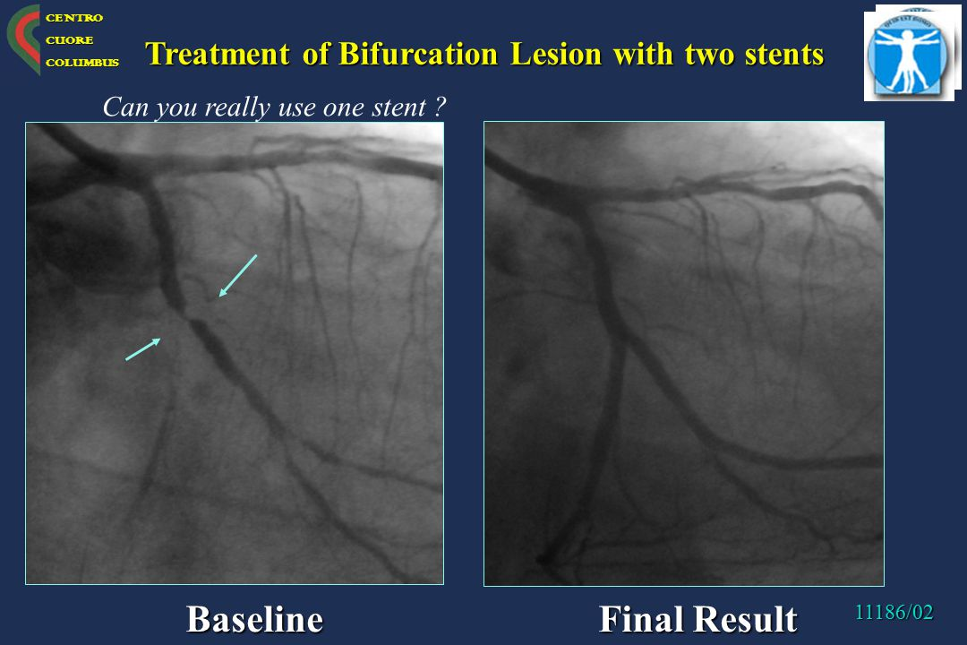 Baseline Final Result Treatment of Bifurcation Lesion with two stents
