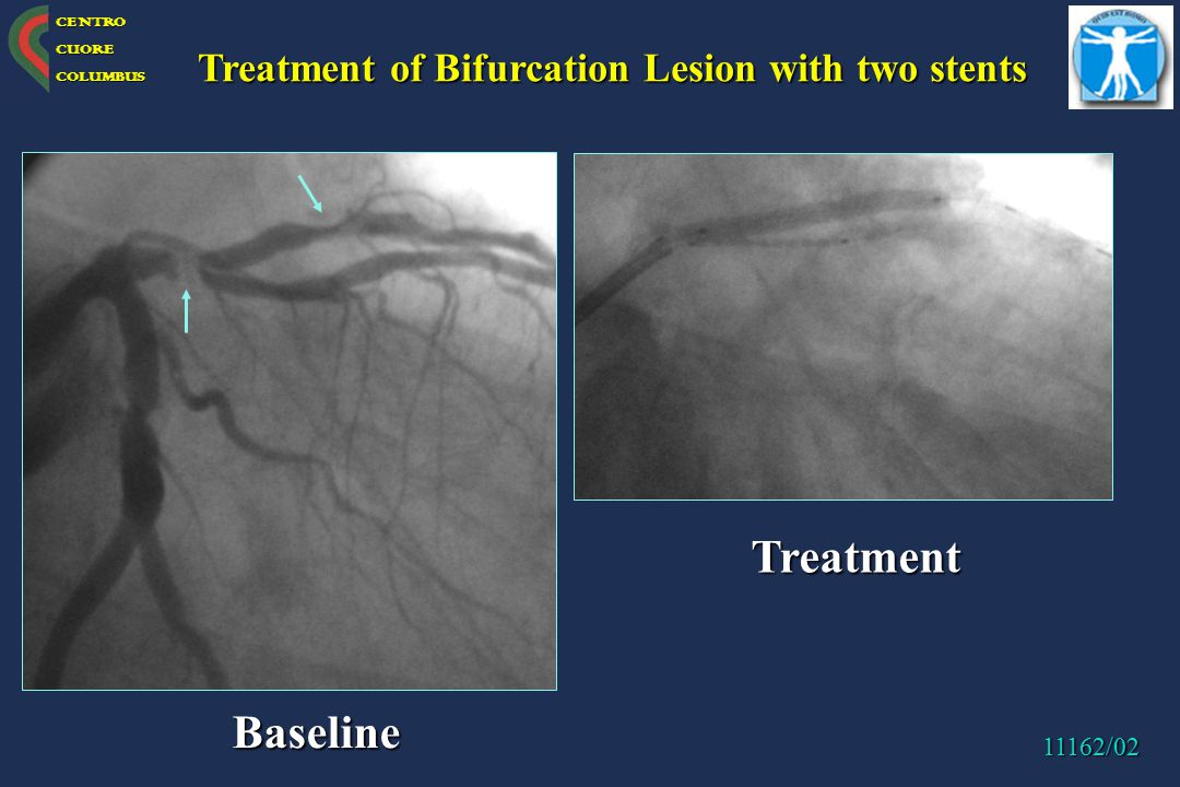 Treatment Baseline Treatment of Bifurcation Lesion with two stents