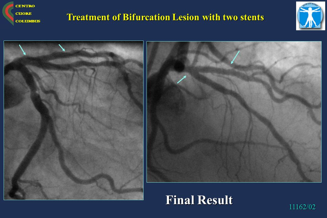 Treatment of Bifurcation Lesion with two stents