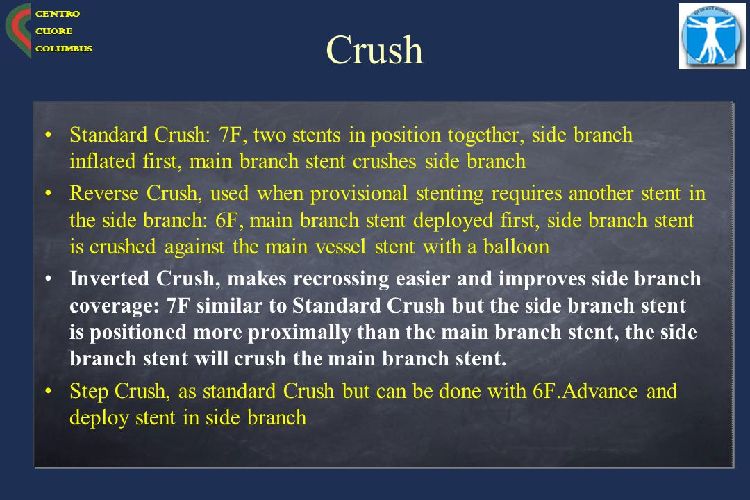 Crush Standard Crush: 7F, two stents in position together, side branch inflated first, main branch stent crushes side branch.