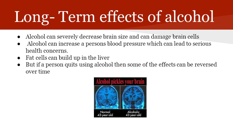 Long- Term effects of alcohol