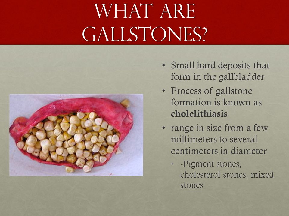 What are gallstones Small hard deposits that form in the gallbladder