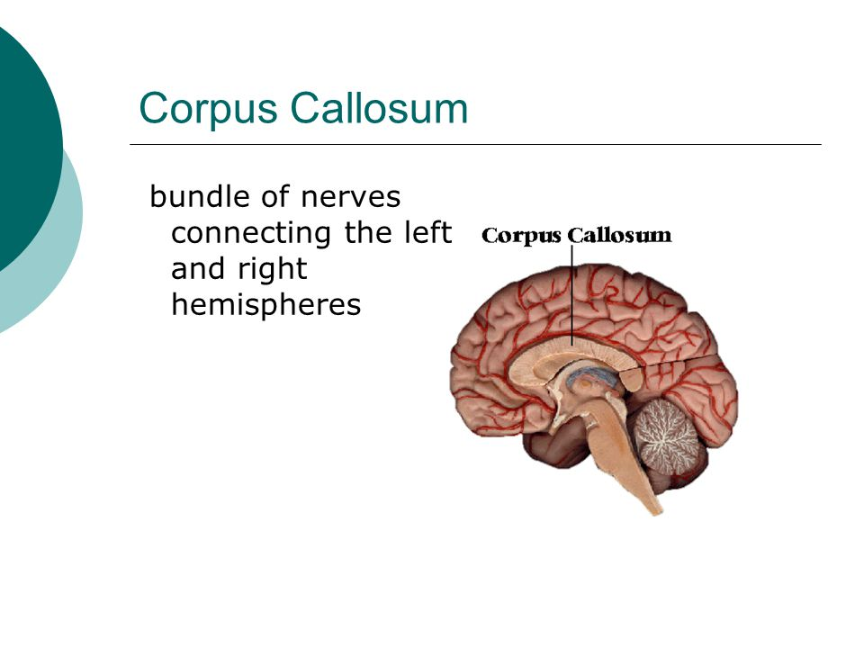 Corpus Callosum bundle of nerves connecting the left and right hemispheres