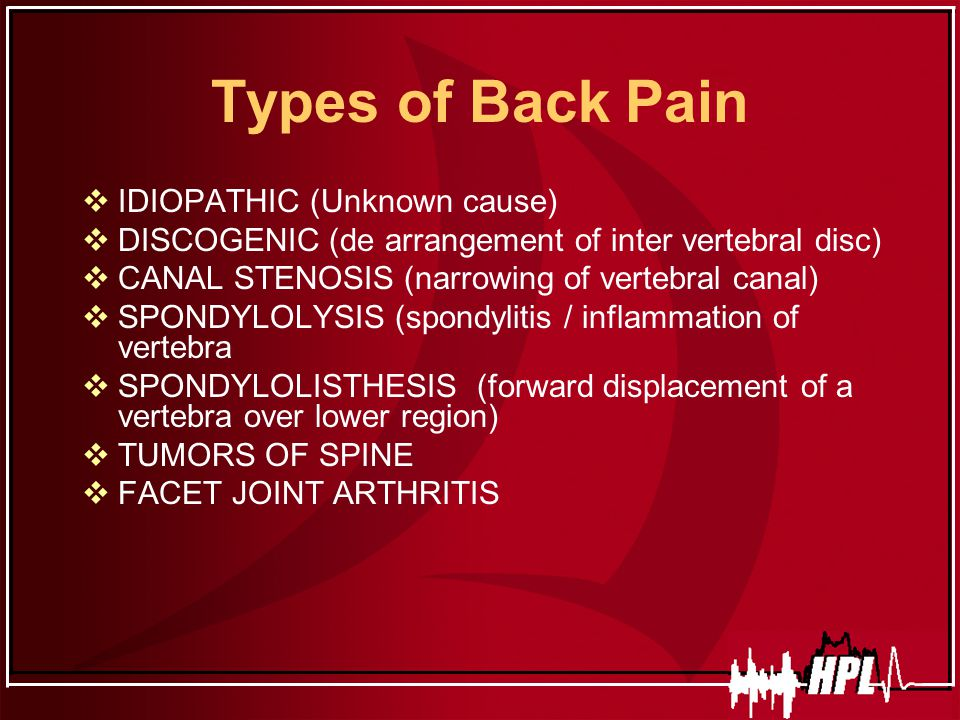 Low Back Pain By Dr Ajay Kumar Ppt Video Online Download