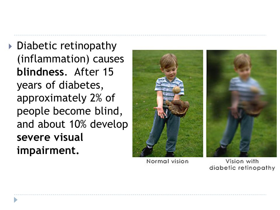 Diabetic retinopathy (inflammation) causes blindness