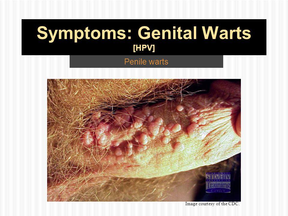 cdc genital warts