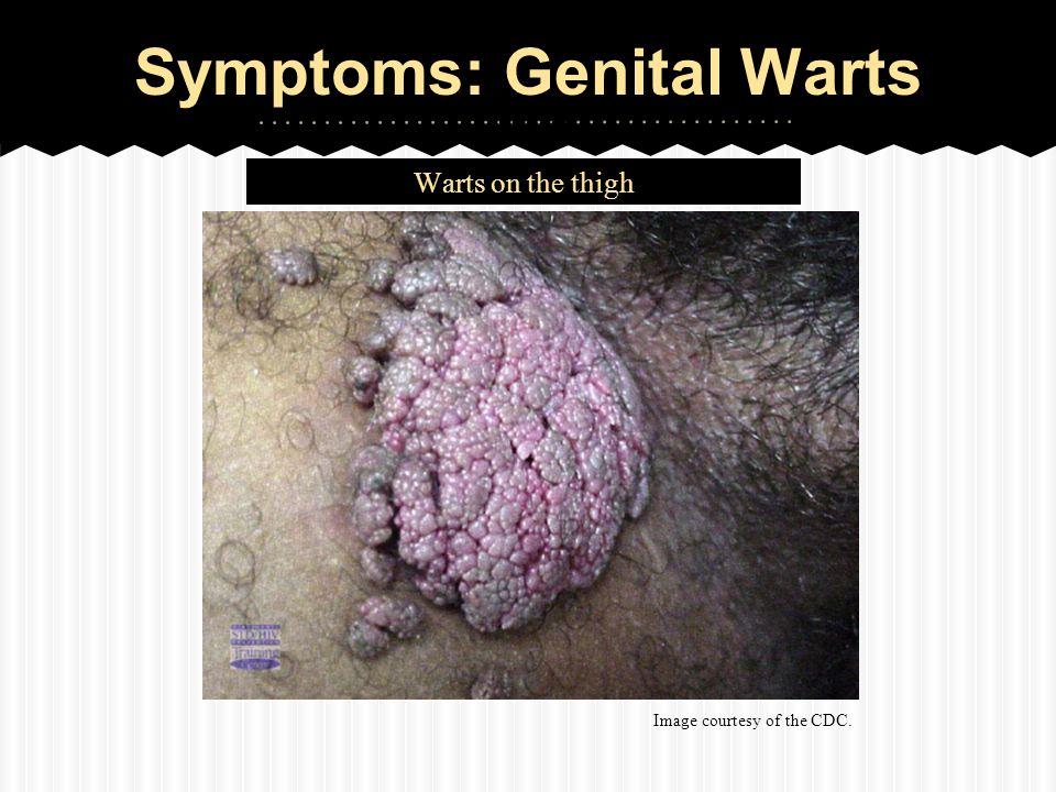 Hpv warts getting worse. Medicament vierme amway
