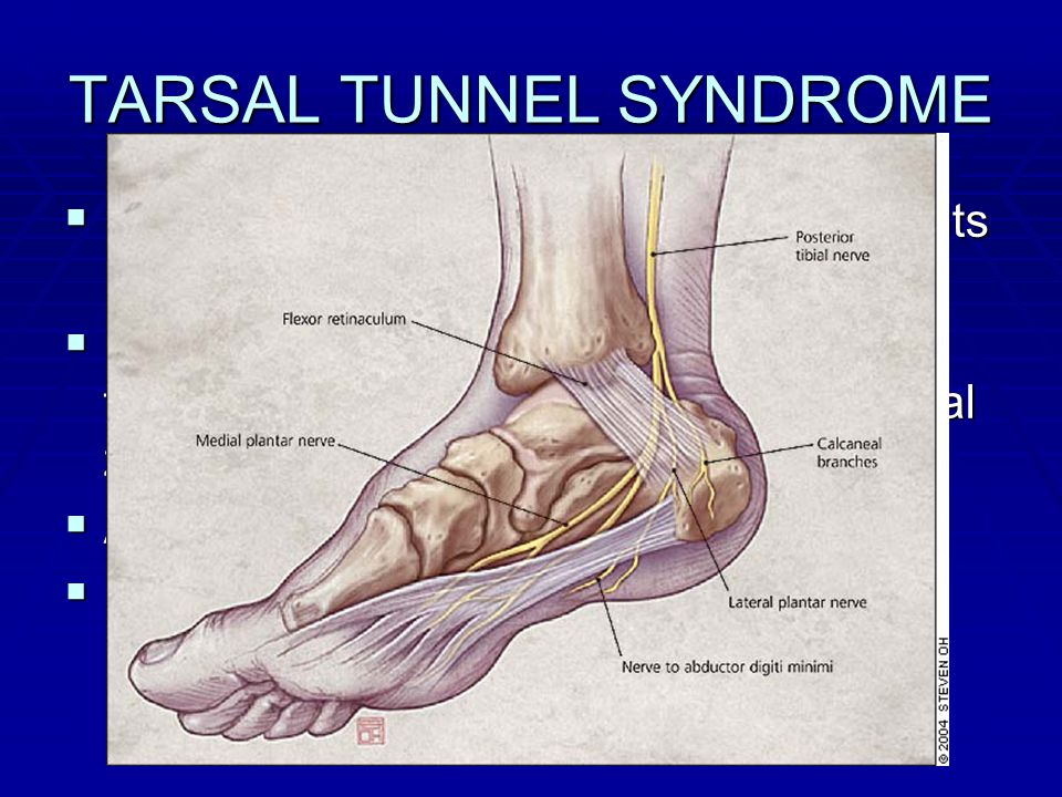 Foot and Ankle Complaints - ppt video online download