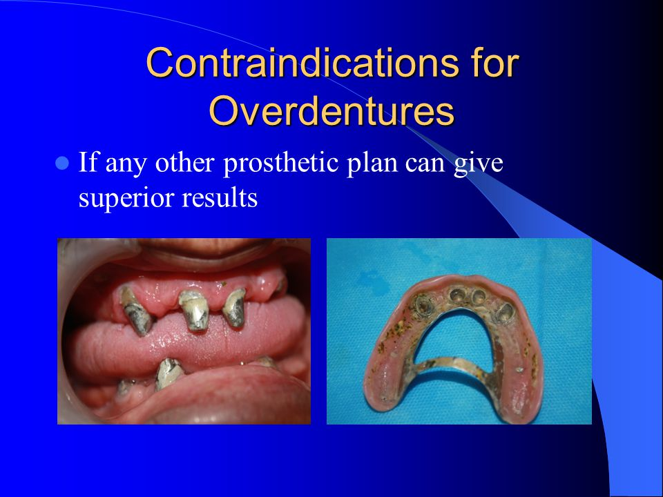 Contraindications for Overdentures