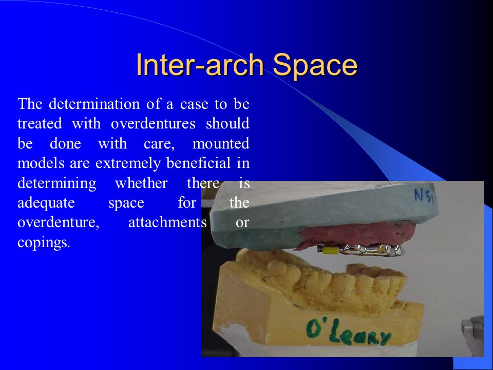 Inter-arch Space