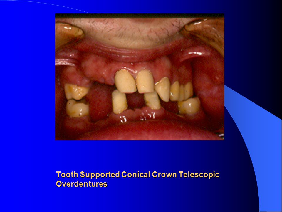 Tooth Supported Conical Crown Telescopic Overdentures
