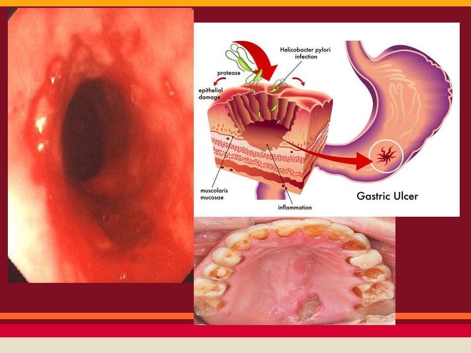 Digestive System Diseases/Complications - ppt video online download