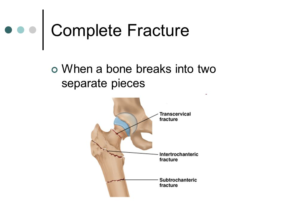 Fractures Sprains And Dislocations Ppt Video Online Download