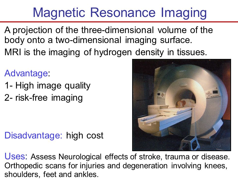 magnetic resonance imaging essay Magnetic resonance imaging machine purpose: magnetic resonance imaging machine (mri) is a machine that uses a magnetic field and pulses of radio wave energy to make detailed images of organs, and structures inside the body.