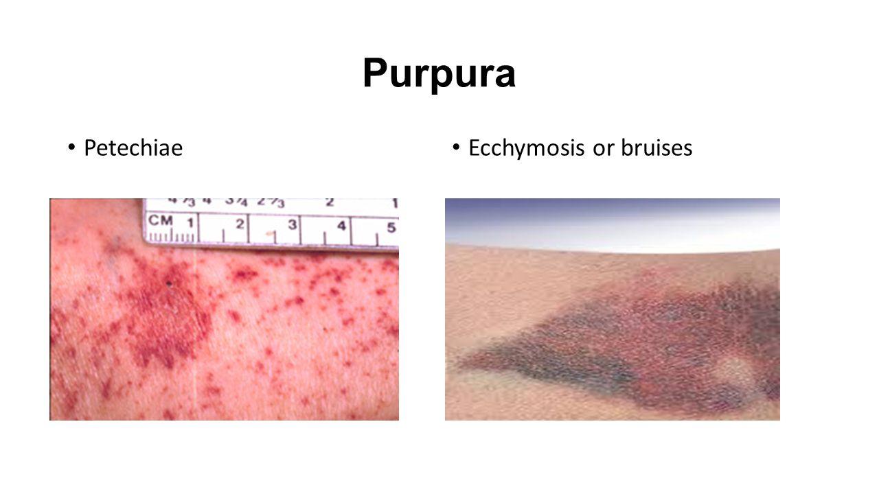 purpura and vasculitis
