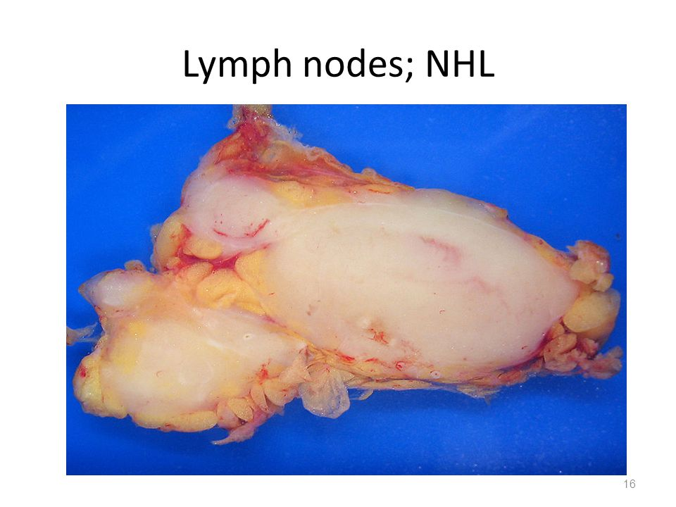 Lymph nodes; NHL