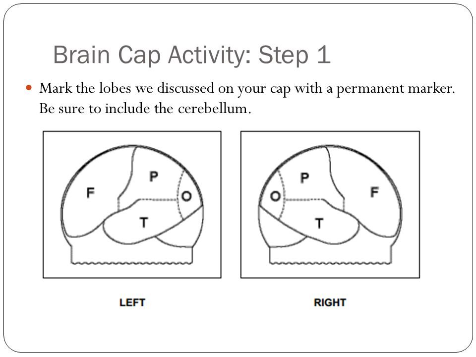 Brain Cap Activity: Step 1