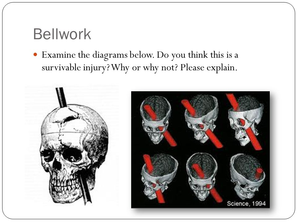 Bellwork Examine the diagrams below. Do you think this is a survivable injury Why or why not Please explain.
