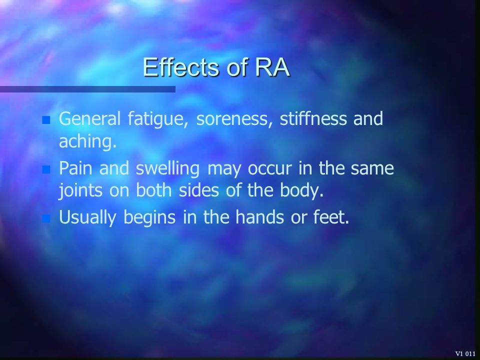 Effects of RA General fatigue, soreness, stiffness and aching.