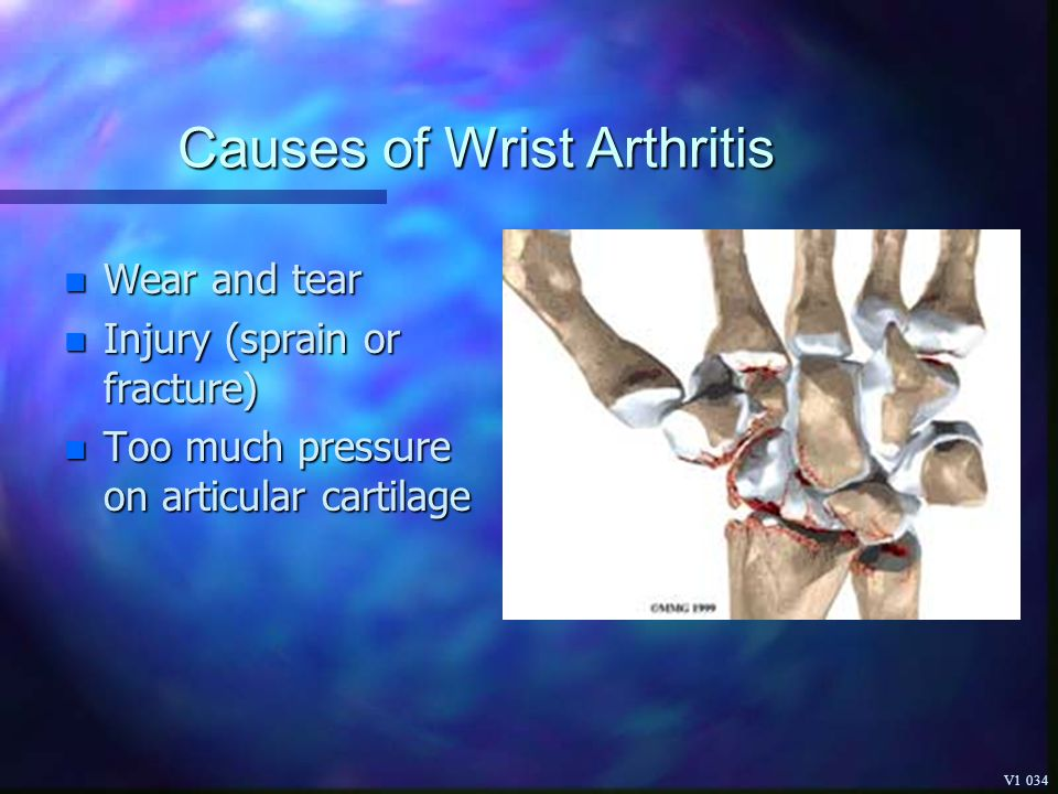Causes of Wrist Arthritis