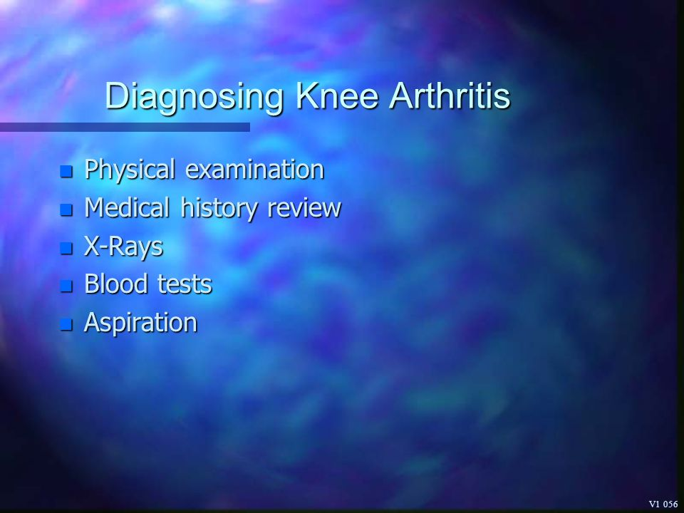 Diagnosing Knee Arthritis