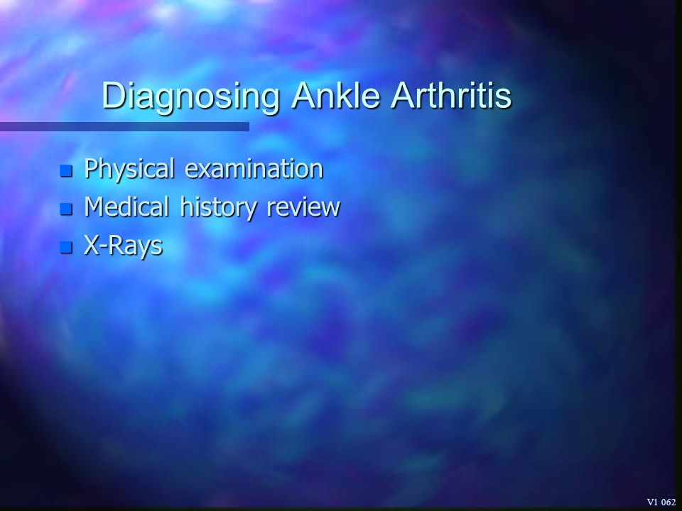 Diagnosing Ankle Arthritis