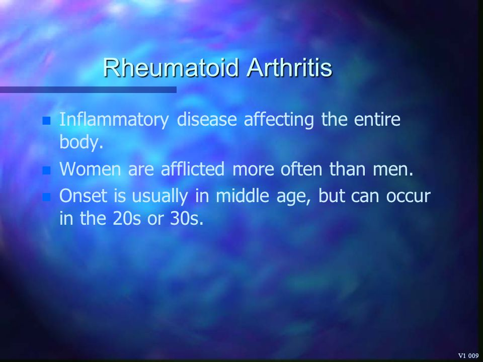 Rheumatoid Arthritis Inflammatory disease affecting the entire body.
