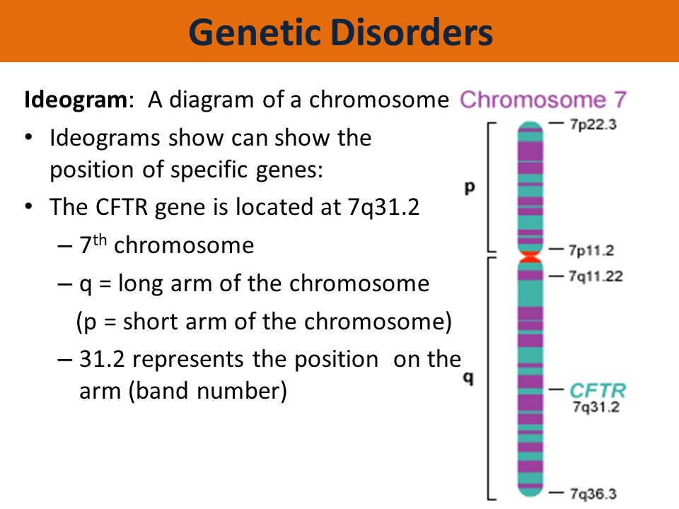 Genetic Disorders Ideogram: A diagram of a chromosome