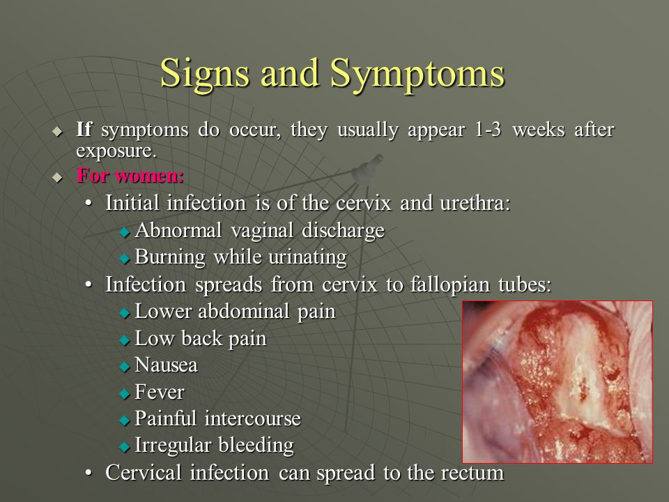 Signs of vaginal infection