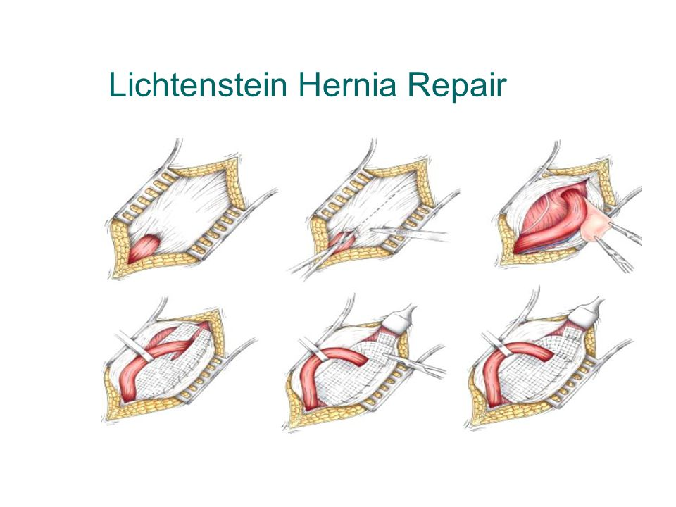 Abdominal Wall Hernias Ppt Video Online Download