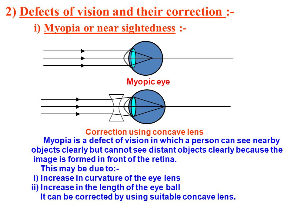 2) Defects of vision and their correction :-
