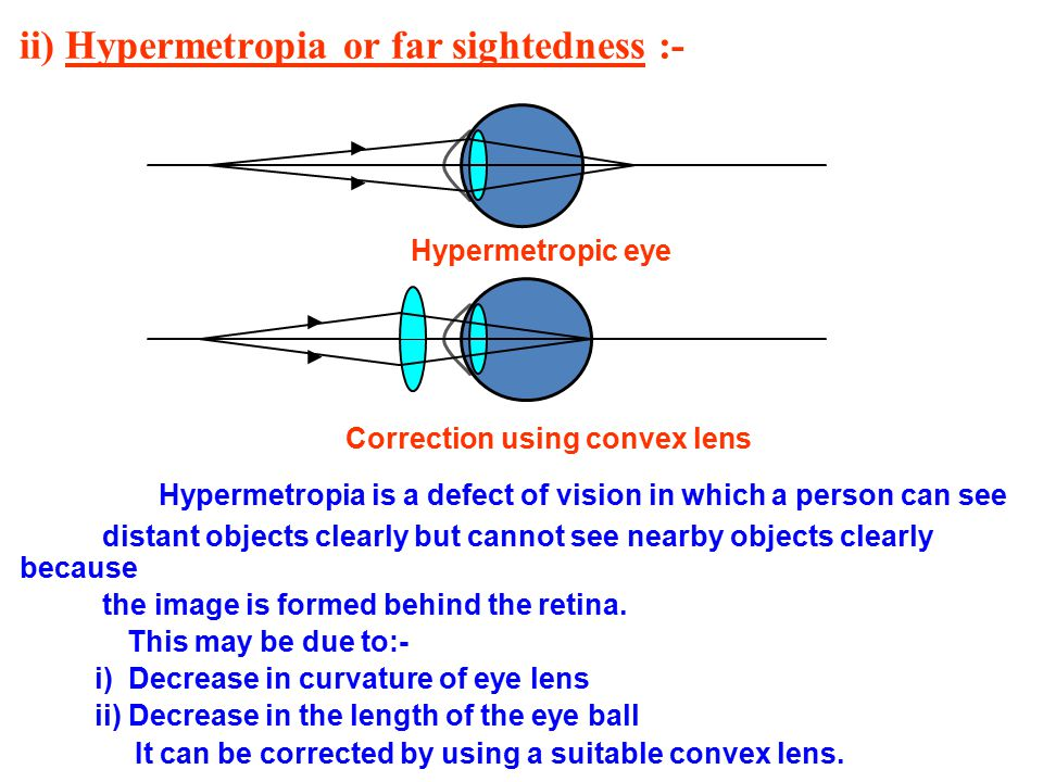 ii) Hypermetropia or far sightedness :-
