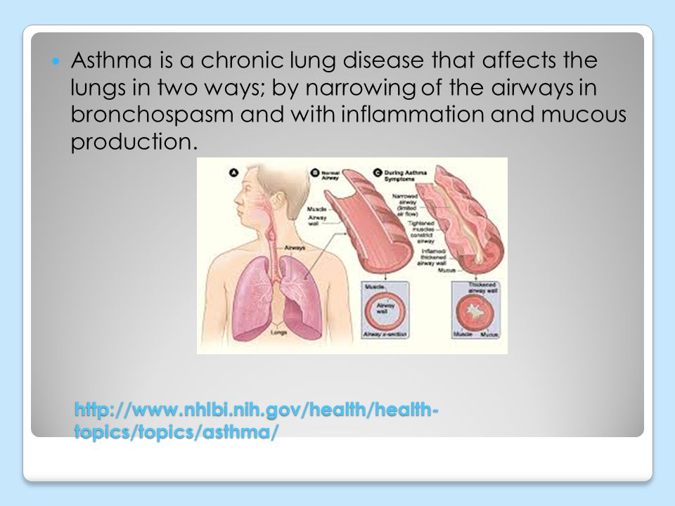 Asthma is a chronic lung disease that affects the lungs in two ways; by narrowing of the airways in bronchospasm and with inflammation and mucous production.