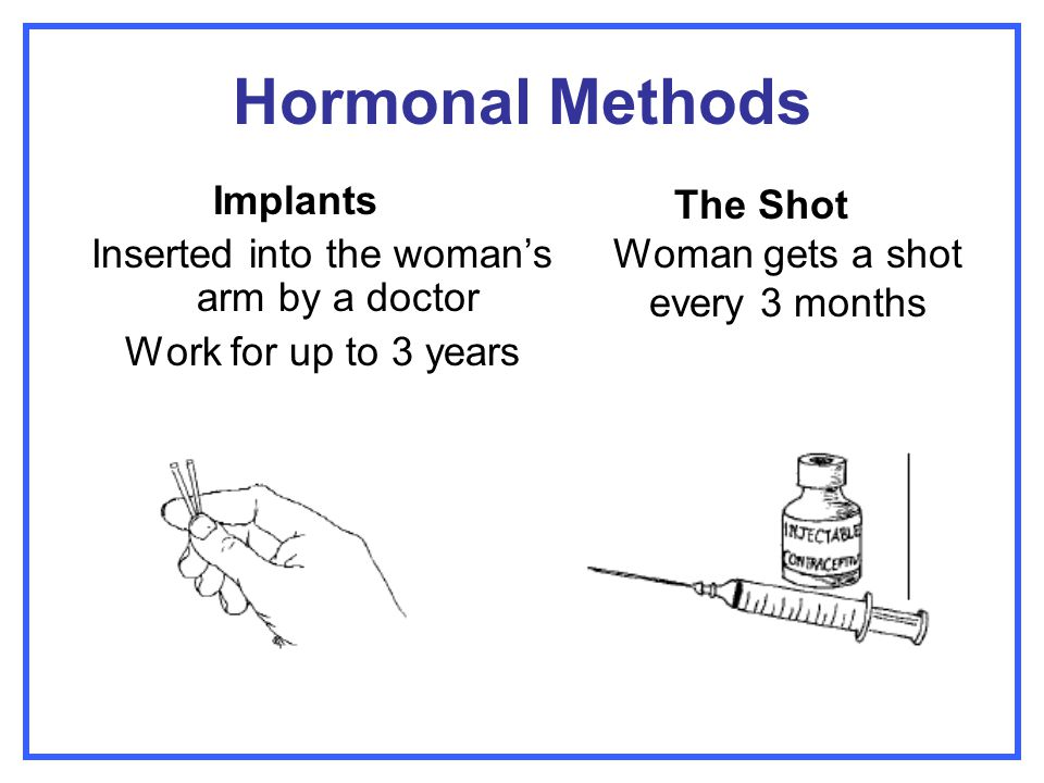 Hormonal Methods Implants Inserted into the woman's arm by a doctor